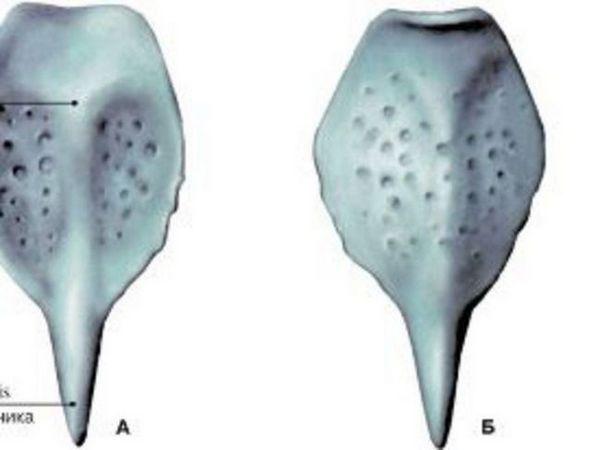 Tratamentul abcesului epiglottis conservator