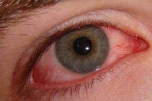 Cum se manifestă conjunctivita adenovirală?