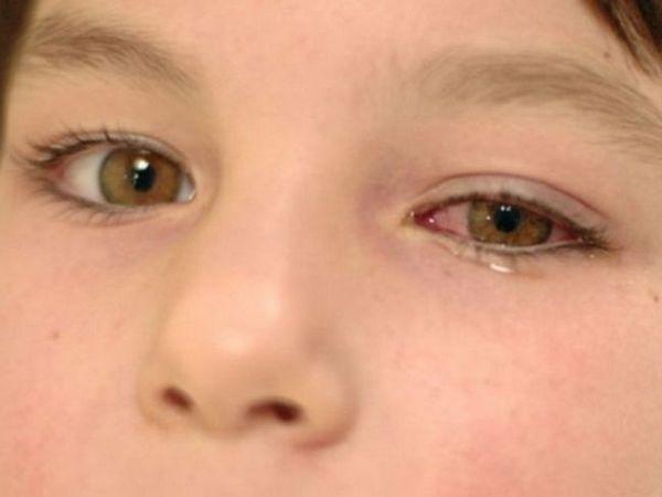 Care sunt ochii tratați pentru conjunctivită