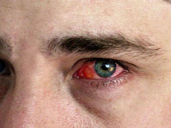 Tipuri de boli oculare
