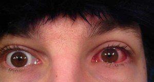 Simptomele bolii