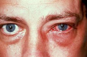 Simptome ale bolii oculare