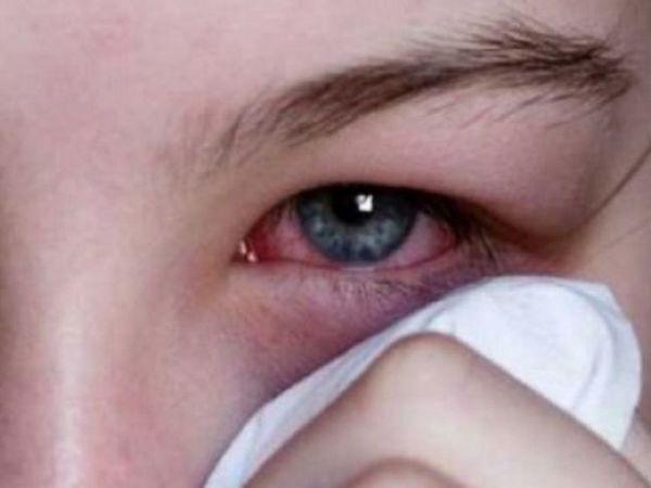 Conjunctivită adenovirală la copii