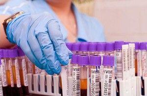 Norm ALT și AST - donăm sânge pentru analiză