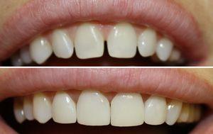 Forme de dinți