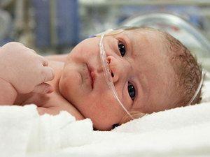 Asfixia nou-născuților
