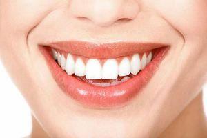 Dinți buni