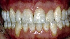Boala de fluoroză