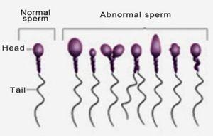 Stânga - sperma normală, dreapta - patologică