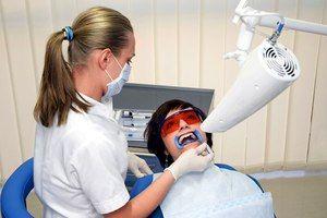 Cum se efectueaza albirea dintilor?