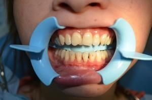 Cum sa albiti dintii corect