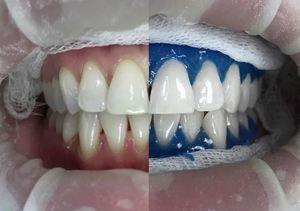 Metode de albire a dinților