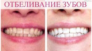 Acasă albirea dinților