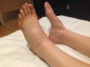 De ce există umflarea picioarelor