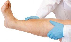 Durerea și umflarea picioarelor sunt semne ale unei boli