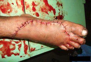 Durerea în picioare după o leziune
