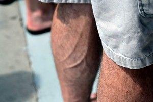 Tromboza venoasă profundă ca cauză a durerii piciorului