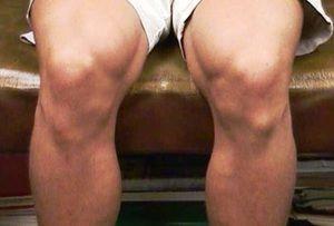 Simptomele bolii Osgood-Schlatter - fotografii