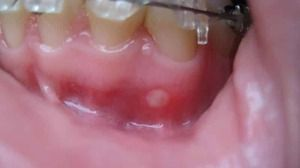 Stomatita pe gingie