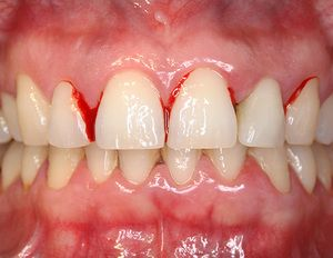 parodontită