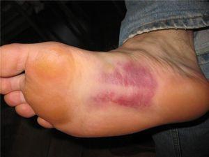 Trauma piciorului poate provoca senzații dureroase