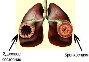 Simptomele bronhospasmului