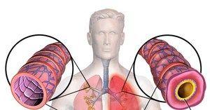 Principalele tipuri de spasme ale bronhiilor