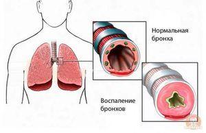 Care este pericolul spasmelor bronșice?