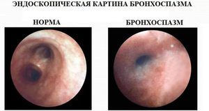 Endoscopia bronhospasmului