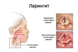 Boala respiratorie