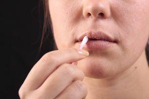 Ce să faci cu herpesul