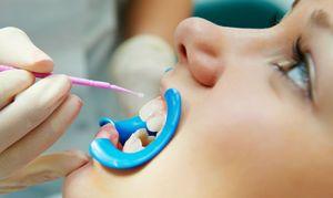 Ce este fluoridarea dinților?