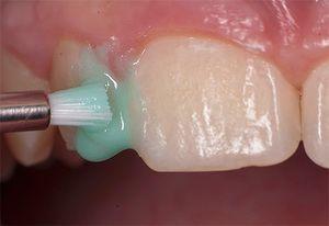 Cum acționează fluorurile dinții?
