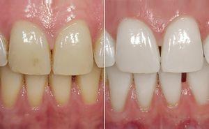 De ce medicii stomatologi recomandă fluorizarea dinților?