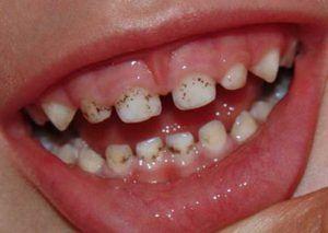 Cauzele plăcii pe dinți