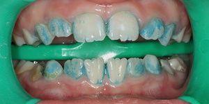 Cum să vindeci dinții de la negrii negri