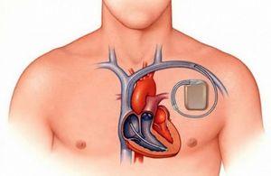 Contraindicații pentru curățarea dinților și pentru stimulatorul cardiac