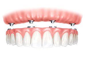 implanturile