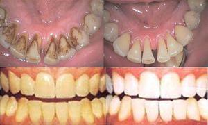 Curățarea dinților