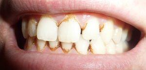 Piatră pe dinți
