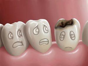 Dacă nu vă periați dinții