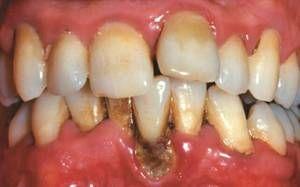 bolii parodontale
