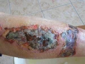 Granularea granulei ranii