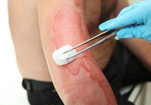 Vindecarea pielii cu arsură