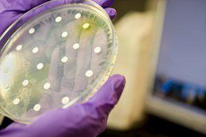 Caracterizarea bacteriilor anaerobe