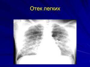 radiogramă