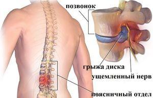 Cauzele bolii lamboului