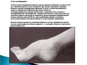 Conceptul general al sindromului Friedreich