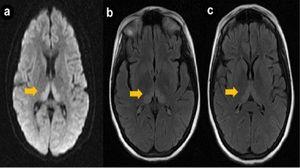 RMN de encefalopatie - leziuni ale creierului