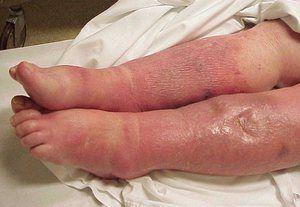 Cum se manifestă sepsis la oameni?
